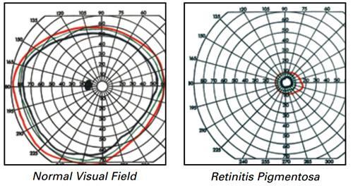 campo visivo normale e con retinite pigmentosa