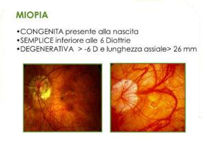 miopia congenita, semplice, degenerativa