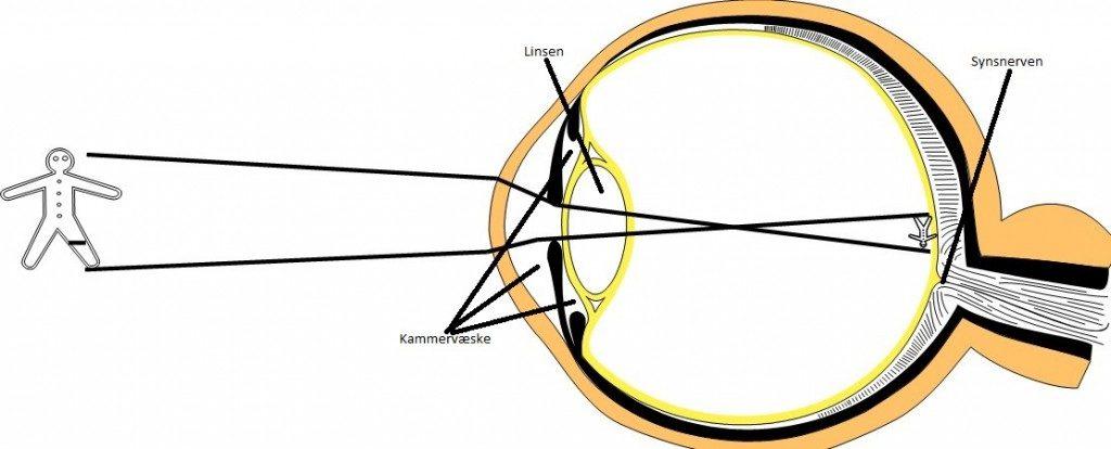 immagine glaucoma