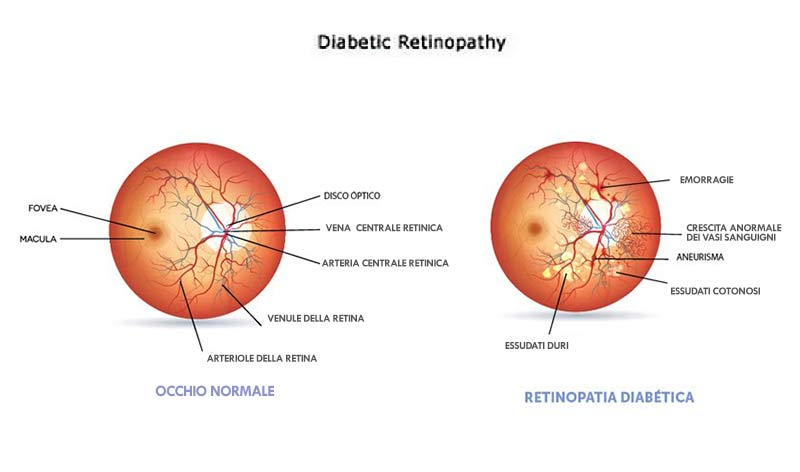 cura retinopatia-diabetica con agopuntura Boel