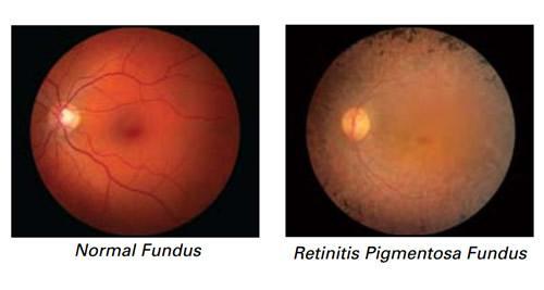 fondo dell'occhio normale e con retinite pigmentosa