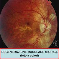 Cura maculopatia (testimonianza)
