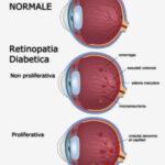 retinopatia-diabetica