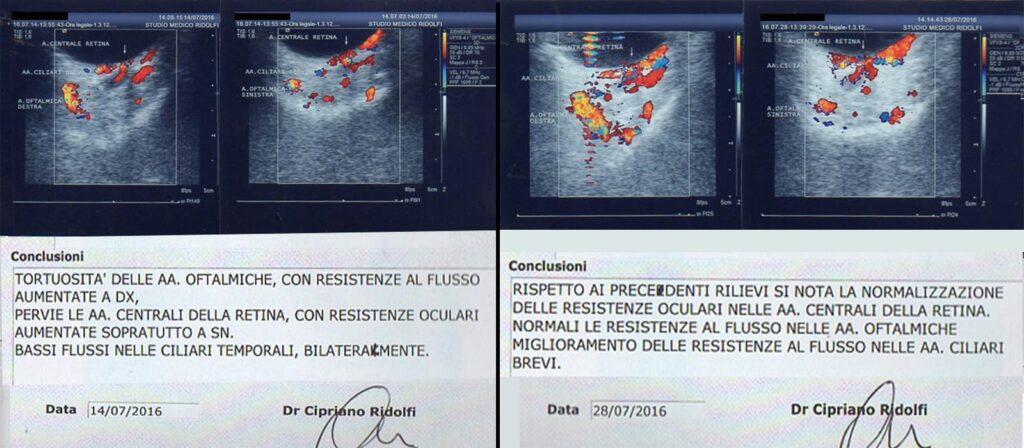 referti ecocolordoppler oftalmici prima e dopo l'agopuntura Boel