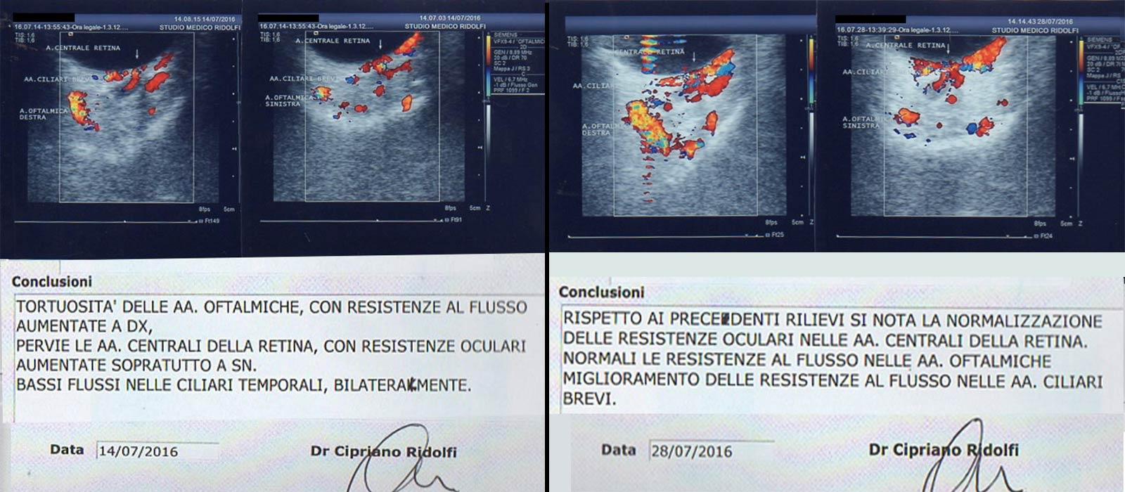 referti di Ecocolordoppler oftalmici prima e dopo un ciclo di 10 sedute di Agopuntura Boel