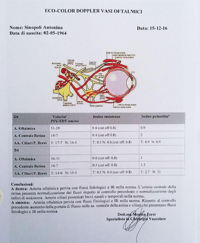 ecocolordoppler maculopatia dopo la cura boel