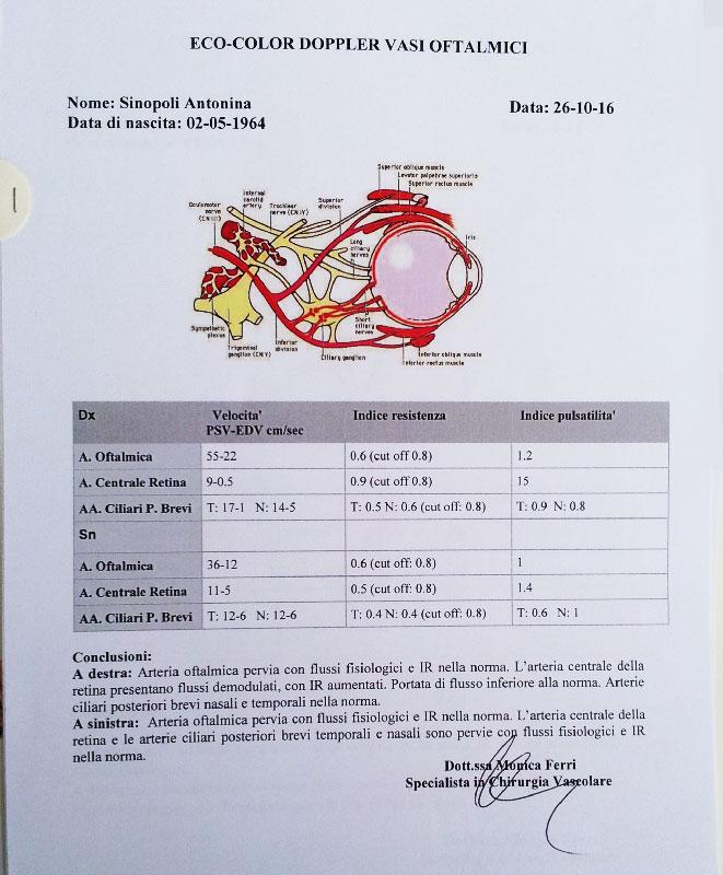 ecocolordoppler maculopatia prima della cura boel