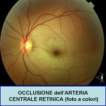 occlusioni vascolari retiniche