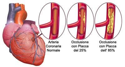 occlusione-arterie-coronaria