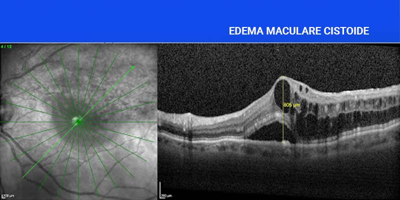 OCT in edema maculare da occlusione della vena retinica temporale Foto di FondazioneMacula