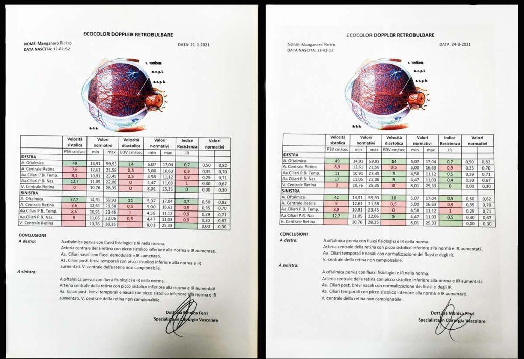 ecodoppler prima e dopo agopuntura Boel